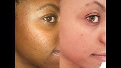 hqdefault - Acne Skin Site Brown Sugar
