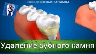 Уроки стоматологии: Воспаление десны из за зубного камня  Как удалить зубной камень из десны