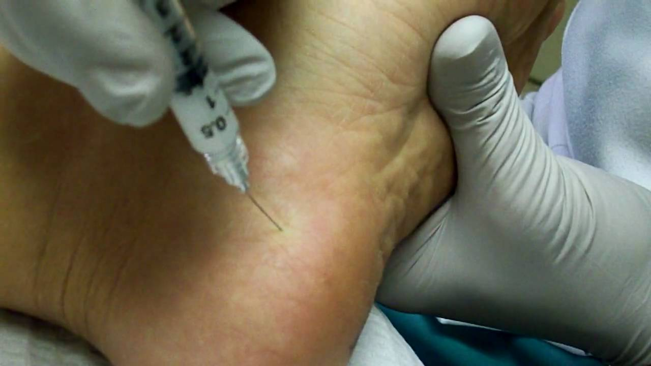 plantar fascia steroid injection technique