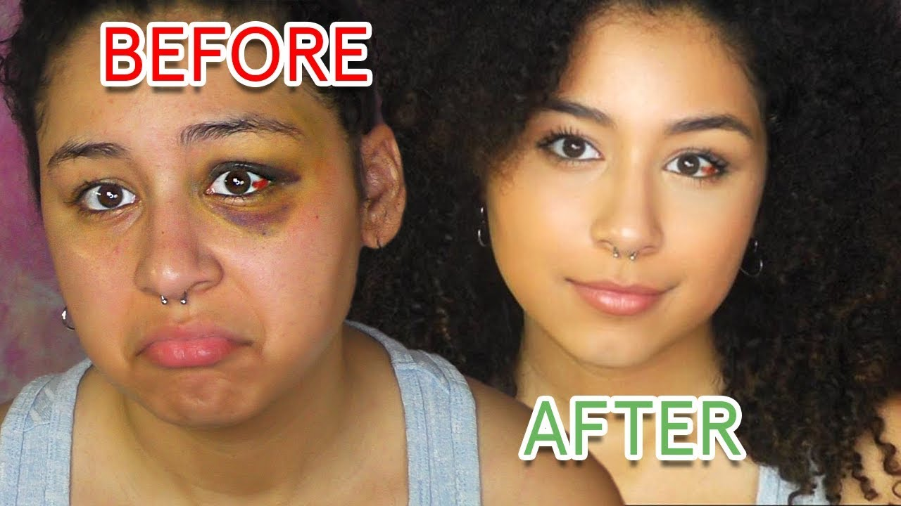 How To Cover A Black Eye With Drugstore Make Up Not Cakey Youtube