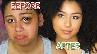How To Cover A Black Eye With Drugstore Make Up | Not Cakey