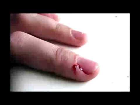 Que sanar el hongo sobre las uñas la forma