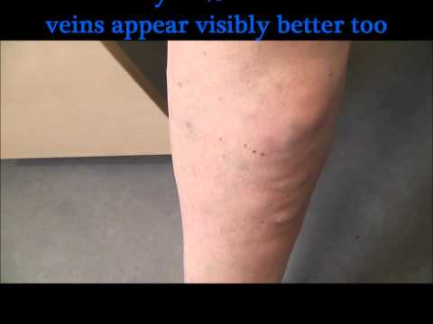 Severe superficial thrombophlebitisbefore and 48 hours after treatment