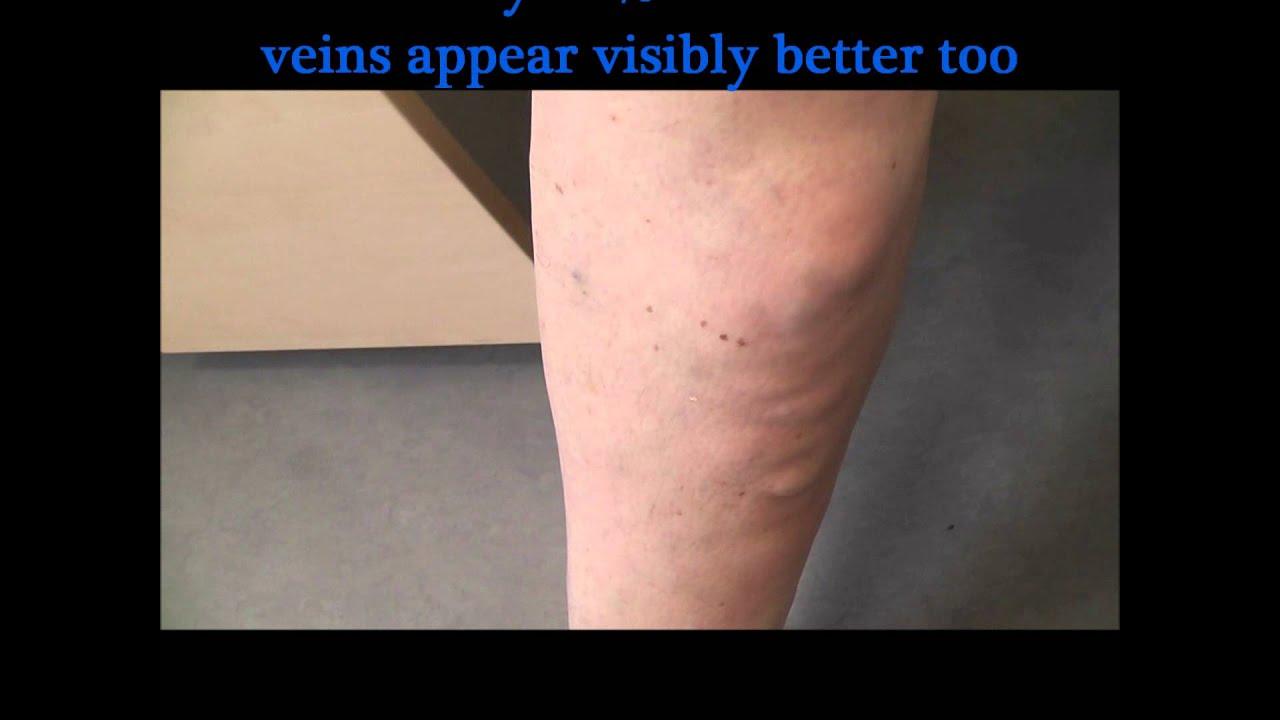 treatment of superficial thrombophlebitis of the leg