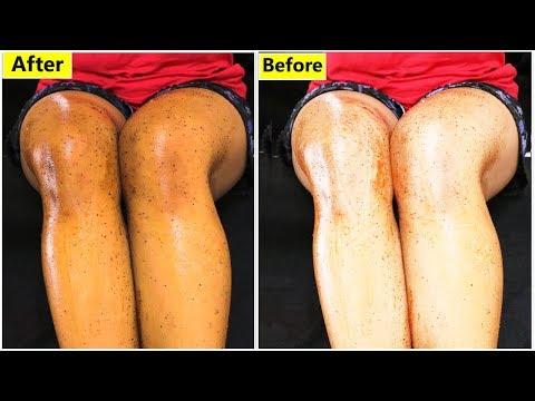 सालों साल पुरे शरीर के जमी मैल और गंदगी मिनटों में साफ करें|Surprising Full body whitening Challenge