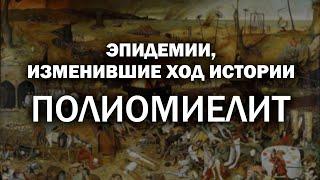 Эпидемии, изменившие ход истории. Полиомиелит