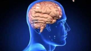 Dr. Zicky Yombana, SpS, alumni Departemen Neurologi RSCM-FKUI Jangan Remehkan Sakit kepala karena sa.