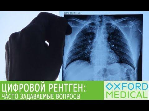 Цифровой рентген: часто задаваемые вопросы