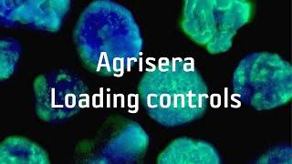 Agrisera Loading controls