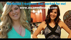 The Keloid Treatment that worked for me!