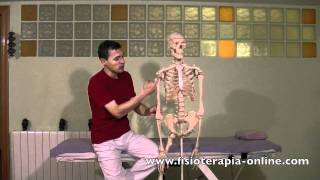 ¿Qué es el síndrome de impactación subacromial o impingement?