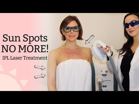 Sun Spots No More! - IPL (Photofacial) Laser Treatment | Dominique Sachse