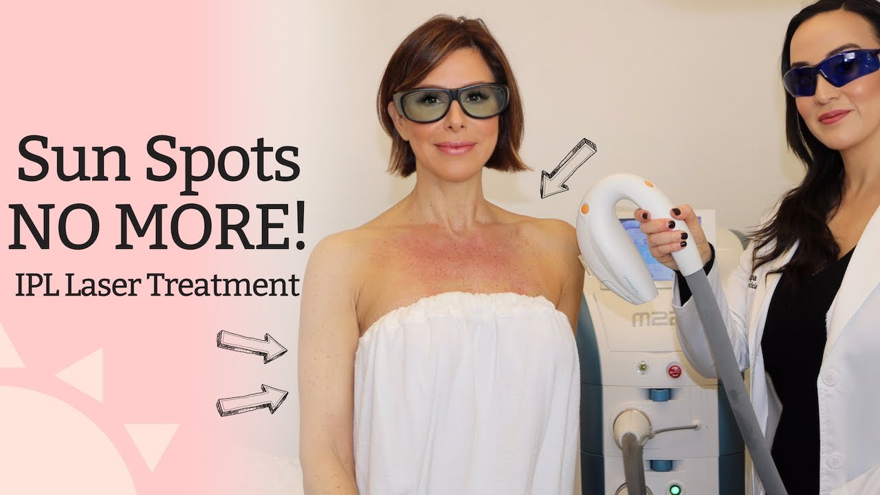 Sun Spots No More Ipl Photofacial Laser Treatment