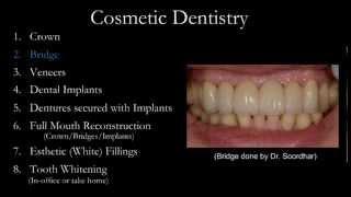 Cosmetic Dentist | Milton, Oakville, Mississauga, Toronto, Burlington, Niagara Falls Thumbnail
