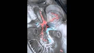 Anatomía II. Práctica 11: tronco celíaco