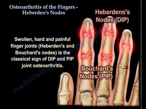 Osteoarthritis Of The Fingers, Heberden's Nodes - Everything You Need To Know - Dr. Nabil Ebraheim