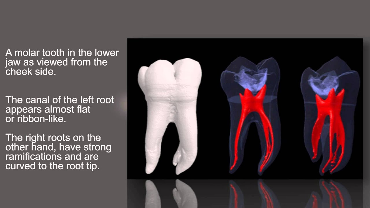 The anatomy of root canals. - YouTube
