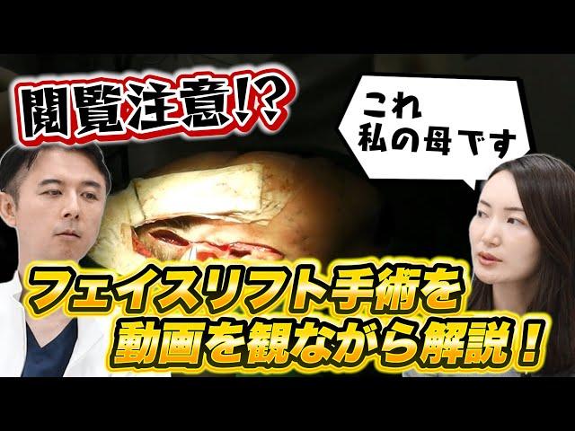 【フェイスリフト】手術動画を観ながら専門医が解説!ビフォーアフター&金額も大公開!