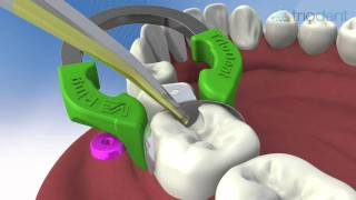 Class II composite restoration using V3 Sectional Matrix System - Triodent