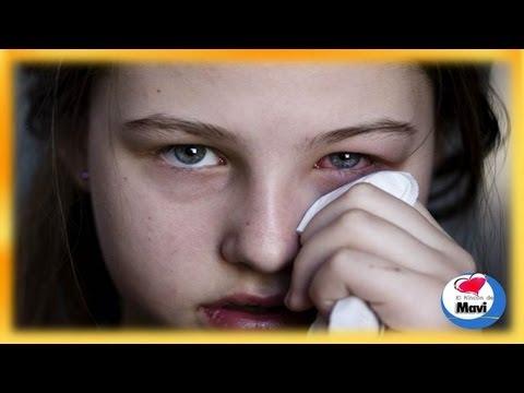 Conjuntivitis tratamiento - Remedios caseros para la conjuntivitis alegica y bacteriana - ...
