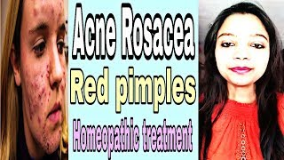 Acne Rosacea...??? homeopathic treatment for acne rosacea...!!!!!