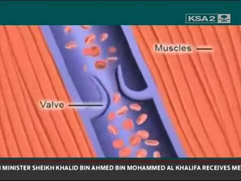 Poliklinika Harni - Venska tromboza i kontracepcija 3. generacije