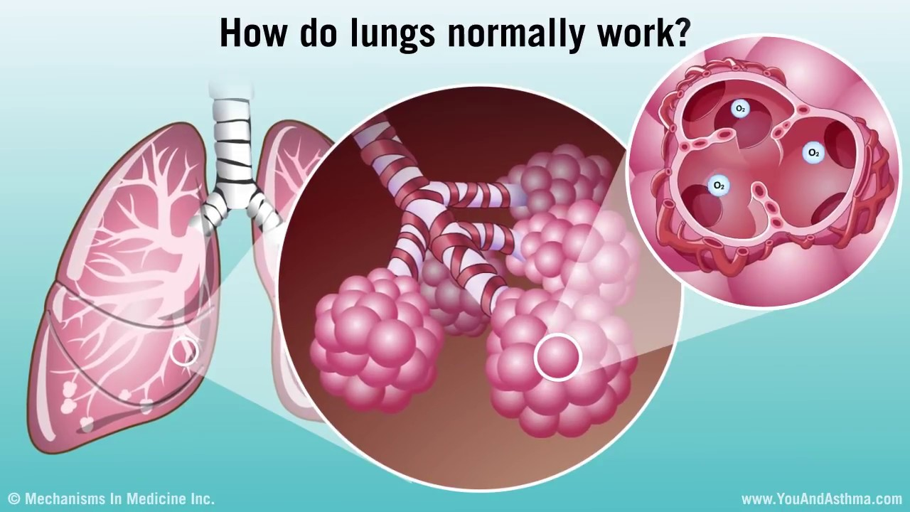 Understanding Asthma: Mild, Moderate and Severe - YouTube