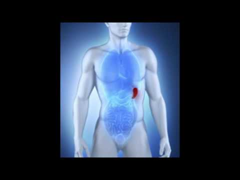hqdefault - Cyst On Spleen Back Pain