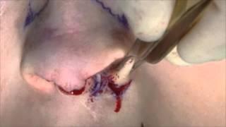 Cleft lip nose surgery - www.rhinoplasty.nl