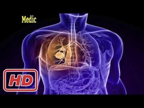 [law-advice]pleural mesothelioma asbestos lung cancer peritoneal causes symptoms prognosis treatmen
