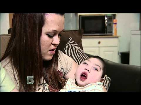 Baby born without brain brain turns 2