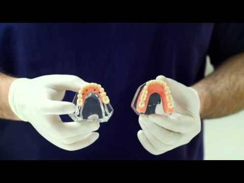 Overdenture On implants vs Teeth on 4 dental implants