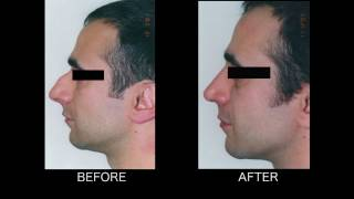 Dramatic Rhinoplasty - Thomas Loeb, MD  NYC Plastic Surgeon