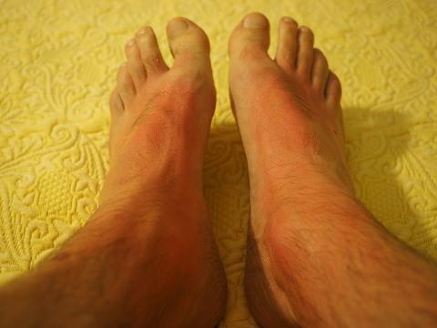 Image result for पैरों की जलन से छुटकारा पाने के लिए अपनाए यह घरेलू उपाय