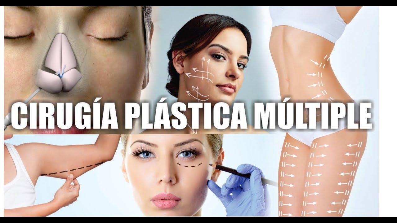 ¿Cuántas CIRUGÍAS puedes AL MISMO TIEMPO? 🚨 PELIGRO: CIRUGÍA PLASTICA MÚLTIPLE!!! 🚫 Dr ALBERTO CALVO