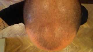 Day 160 Hair Growth Experiment with Rogaine Minoxidil 5%