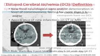 Modul Klinis Cara Membaca CT-Scan Kepala Oleh: Prof. Dr. dr. Ridha Dharmajaya, Sp.BS(K) Kepala Depar.