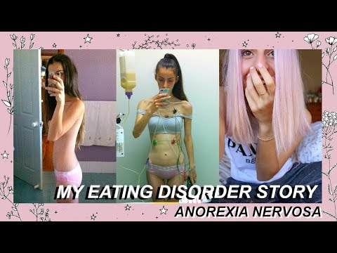 MY EATING DISORDER STORY | Anorexia Through Pictures and Video