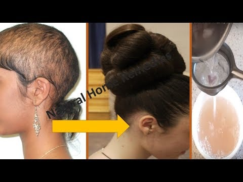 ⭐AWARDED BEST HAIR GROWTH REMEDY TO GROW HAIR IN 4 WEEKS || FIX HAIR FALL || Natural Home Remedies