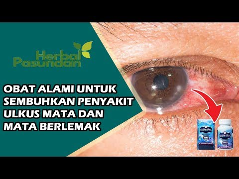 cara-mengobati-penyakit-ulkus-mata-dan-mata-berlemak---testimoni-walatra-sehat-mata-softgel