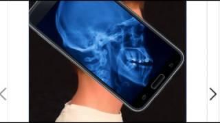 Мобильное приложение Рентген