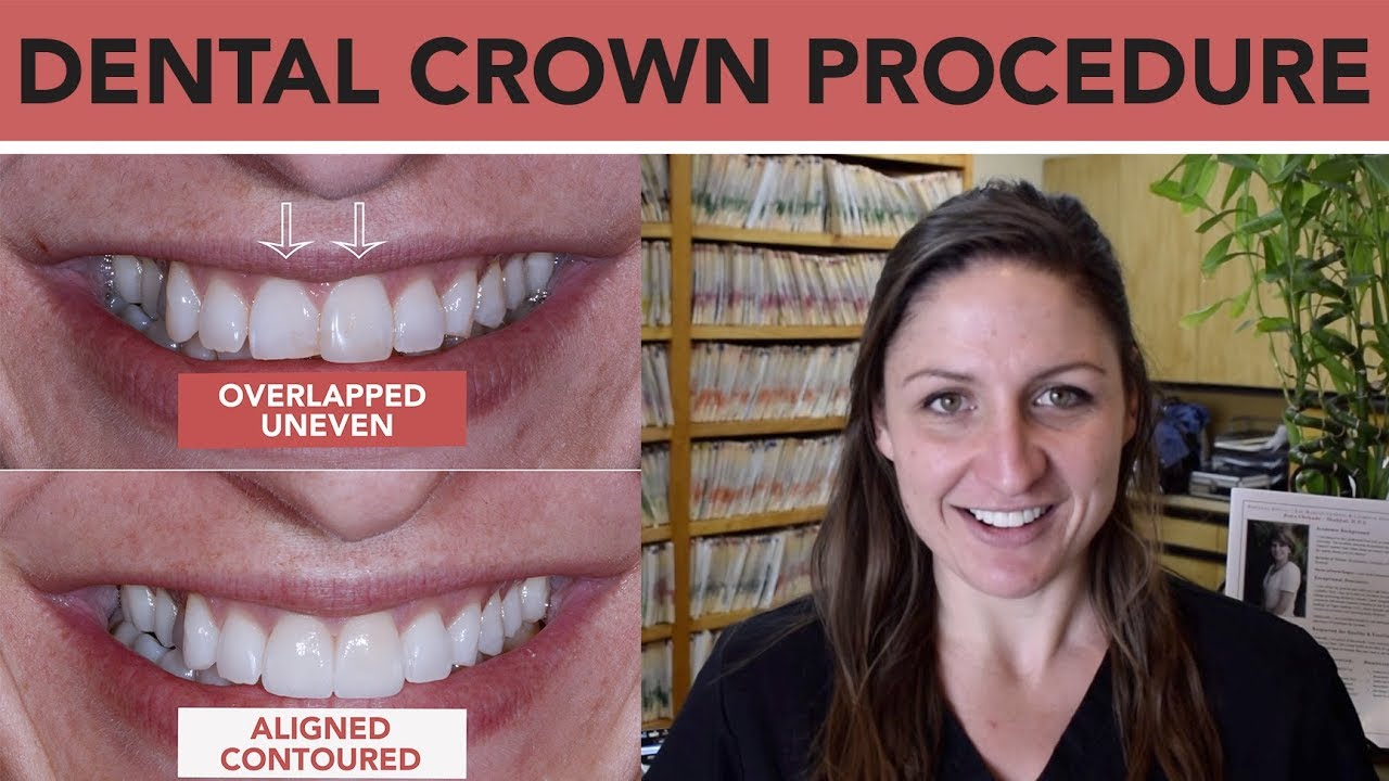 Dental Crowns To Fix Front Teeth Youtube
