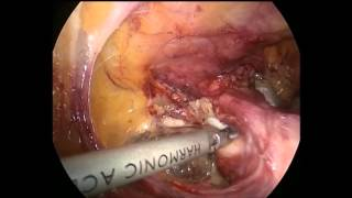 Laparoscopic inguinal hernia repair HT video