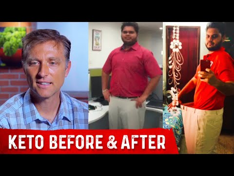 Keto & Intermittent Fasting Before & After with Dr. Berg and Chris Grant