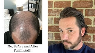 Me, Before and After  Full Removal Of A Thin Skin Poly Hair Replacement or Hair System