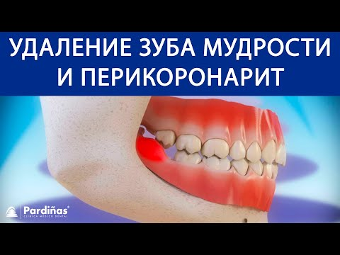 Лезет зуб мудрости и болит десна что делать