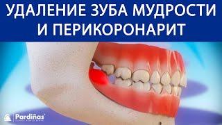 Удаление зуба мудрости и перикоронарит ©(3D-видео Clínica Pardiñas о перикоронарите и других осложнениях, связанных с зубами мудрости и их удалением, в том..., 2016-11-18T08:54:27.000Z)
