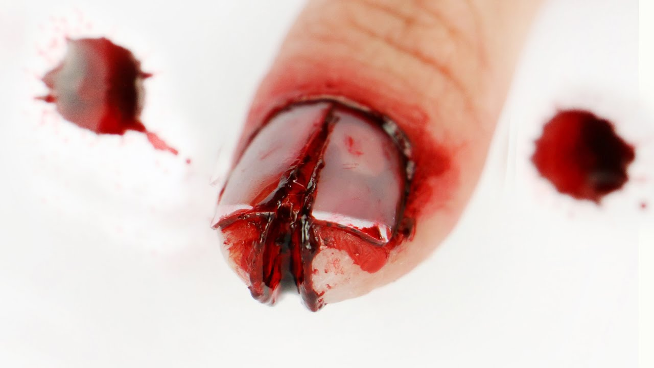 FX Series: I cut my finger and cracked my nail! - YouTube