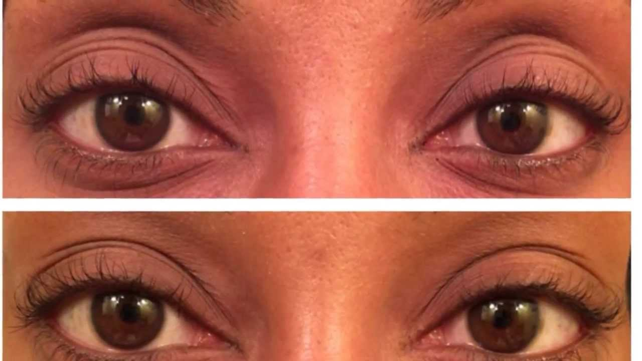 How To Get Long Eyelashes Latisse Does It Work Update Video Youtube