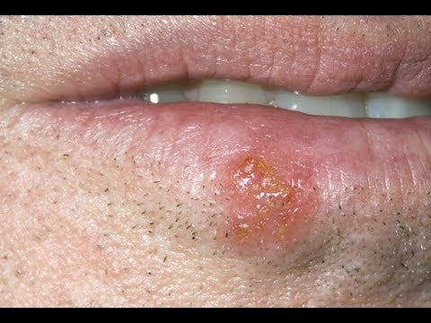 DermTV - How Long Are Cold Sores Contagious [DermTV.com Epi #397]